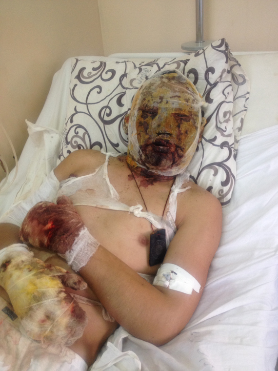 Novaya Gazeta: Interview with a hospitalized Russian soldier in Donetsk